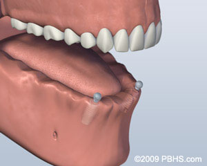 A mouth showing Lower jaw with two implants and no bottom teeth; illustration
