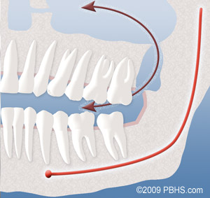 image showing relationship between upper wisdom tooth and sinus area