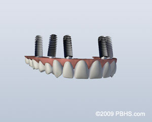 Missing All Upper Teeth image: Upper teeth denture appliance with four dental implants attached.