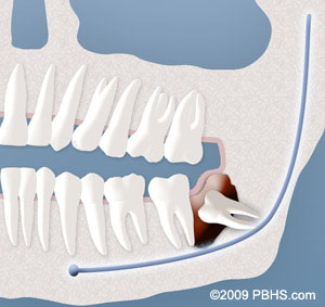 Illustration of teeth showing a cyst around a wisdom tooth