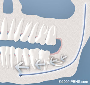 Illustration of wisdom tooth pushing on teeth; arrows pointing to the teeth being pushed called teeth crowding