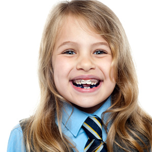 Photo of smiling young girl with braces