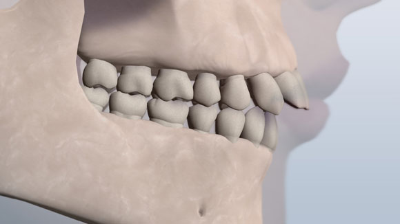 An illustration showing the upper front teeth jutting forward in a class 2 relationship