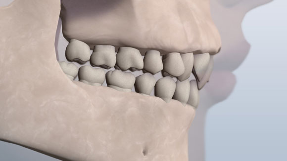 Class II bite graphic showing Division 2 teeth issue