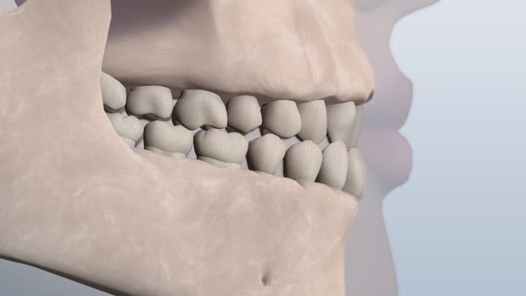 A visual of upper front teeth resting behind the lower due to misaligned teeth