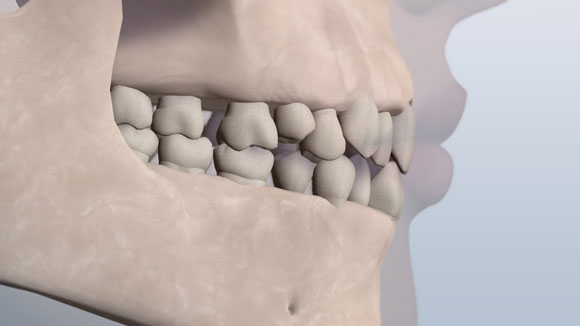 A visual of a jaw showing the teeth in a crowded class 1 relationship