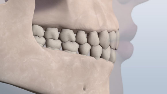 Jaw showing the teeth in a class 1 normal relationship