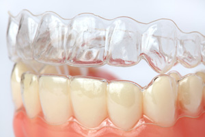 Photo of Clear Aligners over sample teeth