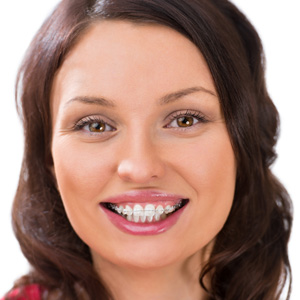 A smiling woman wearing clear ceramic braces