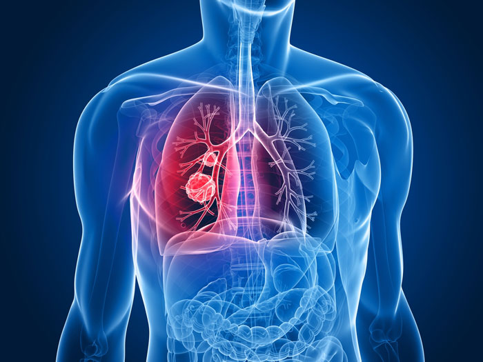 3D x-ray model showing lung cancer